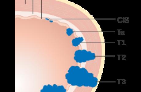 דרוג התפשטות סרטן הערמונית בשיטת   TNM